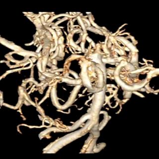3d血管モデル1